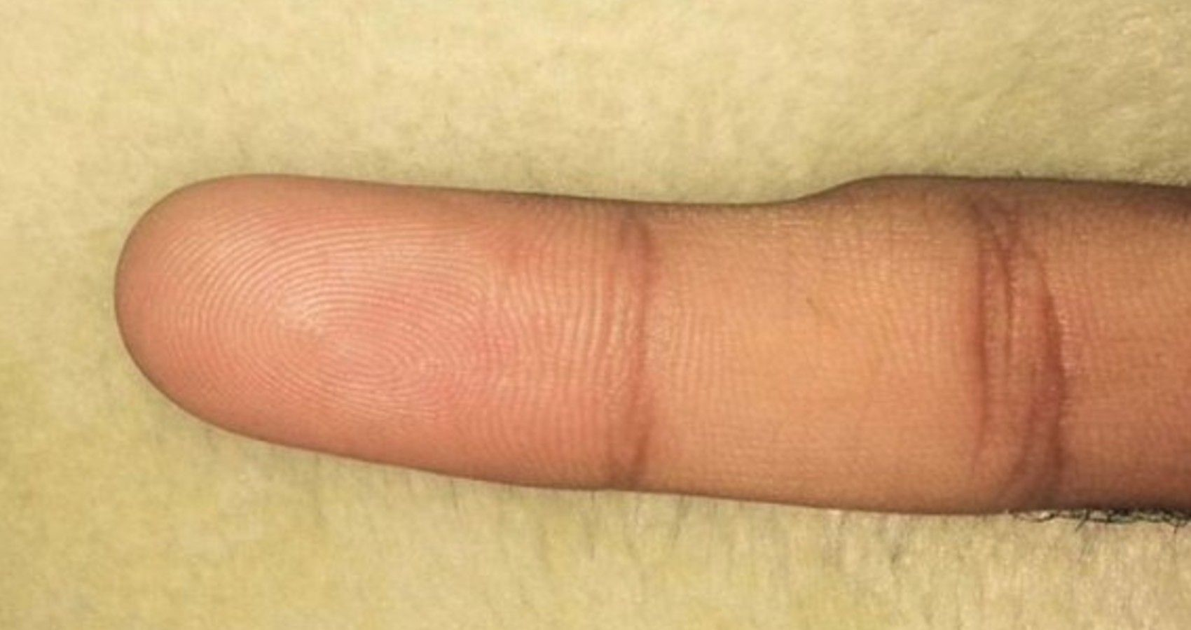 """""""Smartphone Pinky"""" May Be Affecting You 